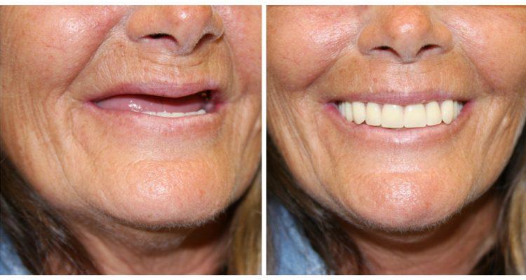 Sarnia Dentures